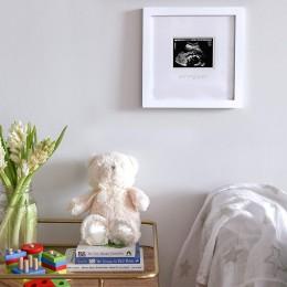 Sonogram Frame
